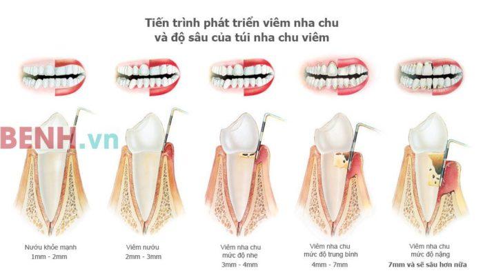 tien-trien-cua-benh-viem-nha-chu