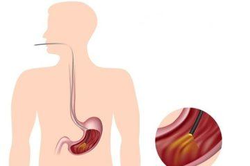 """""""Tất tần tật"""" về nội soi dạ dày"""