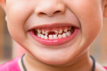 Cách chữa sâu răng cho trẻ em