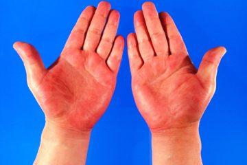 Dấu hiệu cảnh báo bệnh từ đôi bàn tay