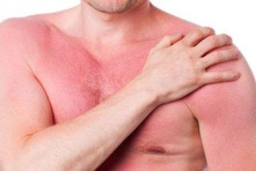 Tại sao bị nóng gan và những lưu ý trong ăn uống