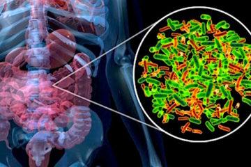 Thật không thể tin được: hệ vi sinh vật đường ruột có thể giúp thúc đẩy cơ thể tiêu diệt ung thư