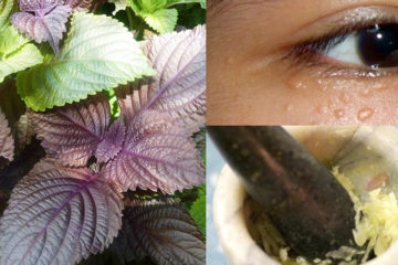 5 phương pháp tự nhiên loại bỏ mụn cóc hiệu quả