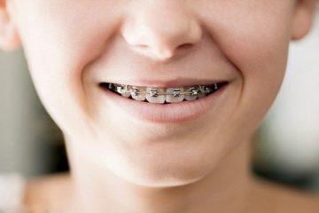 Niềng răng nha khoa – Khi nào là phù hợp ?