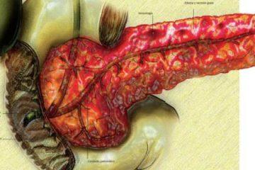 Viêm tụy cấp do dùng thuốc