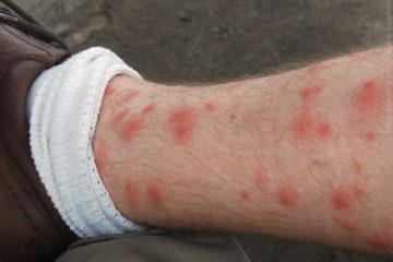 Dấu hiệu xác định côn trùng cắn ( Phần I )