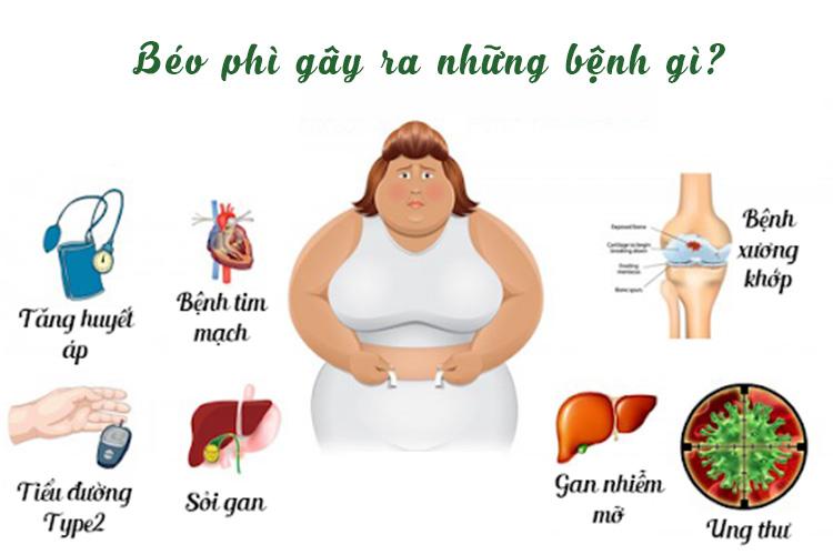 beo_phi_gay_nhieu_benh_xuong_khop