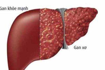 Tổng quan bệnh xơ gan, nguyên nhân, triệu chứng, chẩn đoán và cách điều trị