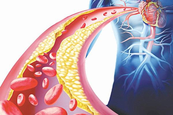 Mỡ máu cao gây biến chứng xơ vữa động mạch, tim mạch, đột quỵ