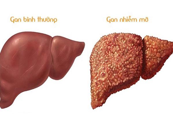 Hình ảnh gan nhiễm mỡ và gan thường