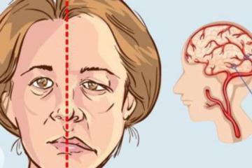 Tai biến mạch máu não: Phân loại, nguyên nhân, triệu chứng