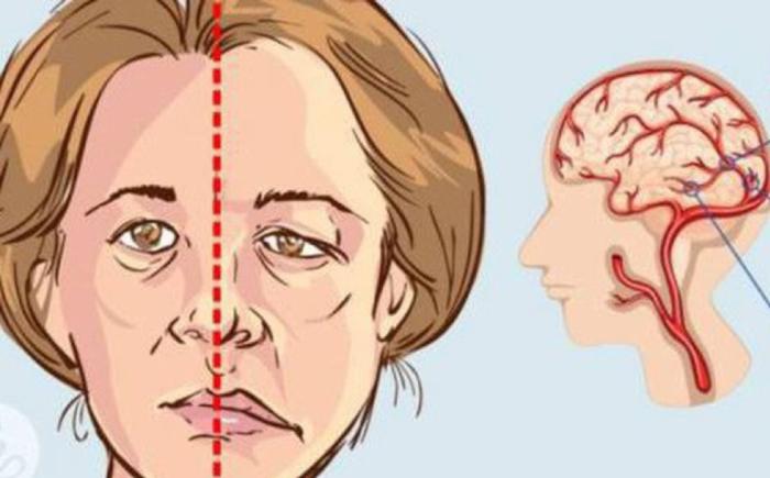 Méo miệng là triệu chứng của tai biến mạch máu não