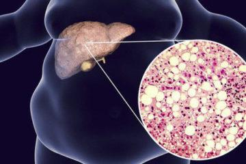 Cẩn trọng 1 số nguyên nhân gan nhiễm mỡ