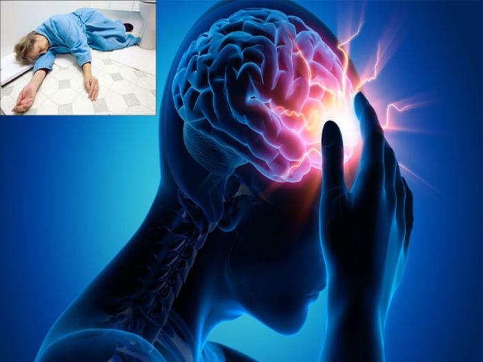 Tai biến mạch máu não hay còn gọi là đột quỵ não