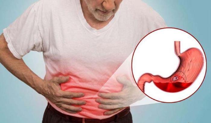 Triệu chứng của đau dày dày, viêm loét dạ dày