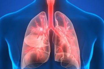 Bệnh viêm phổi, nguyên nhân, triệu chứng, chẩn đoán, điều trị