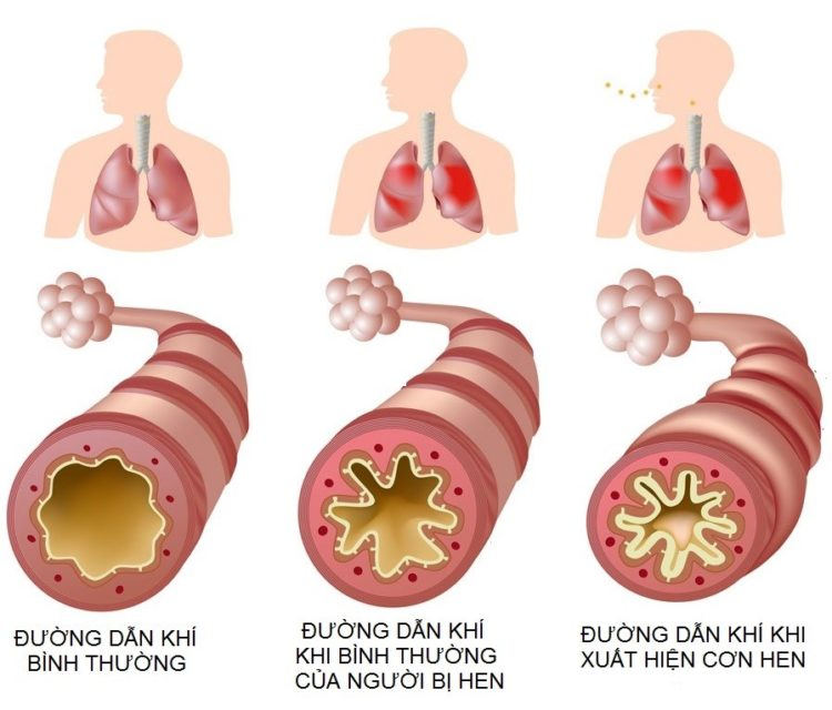 Triệu chứng của hen suyễn
