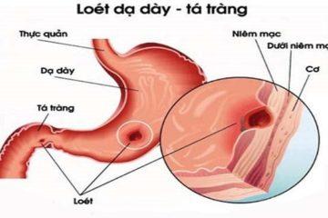 loet-da-day-ta-trang