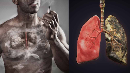 Thuốc lá hại phổi