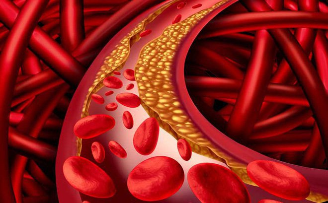 chỉ số Triglyceride trong máu cao