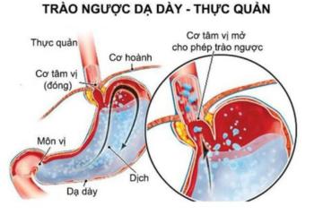 Bệnh trào ngược dạ dày thực quản: Định nghĩa, nguyên nhân và triệu chứng