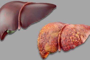 Bệnh gan nhiễm mỡ có chữa được không