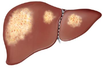 Gan nhiễm mỡ độ 1 – Triệu chứng và cách điều trị bệnh hiệu quả