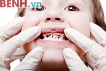 Tổng hợp những loại bệnh răng miệng thường gặp nhất