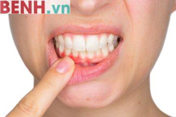 Nguyên nhân gây chảy máu chân răng tiềm ẩn nhiều bệnh lý nguy hiểm