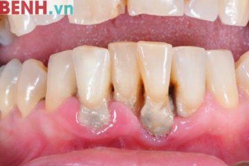 Viêm quanh răng, nguyên nhân, triệu chứng và cách điều trị