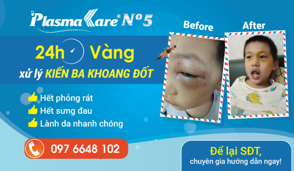 kien-ba-khoang-gel-plasmakare-no5